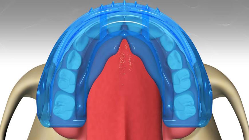 Nuevo sistema Myobrace® en Dentalgil