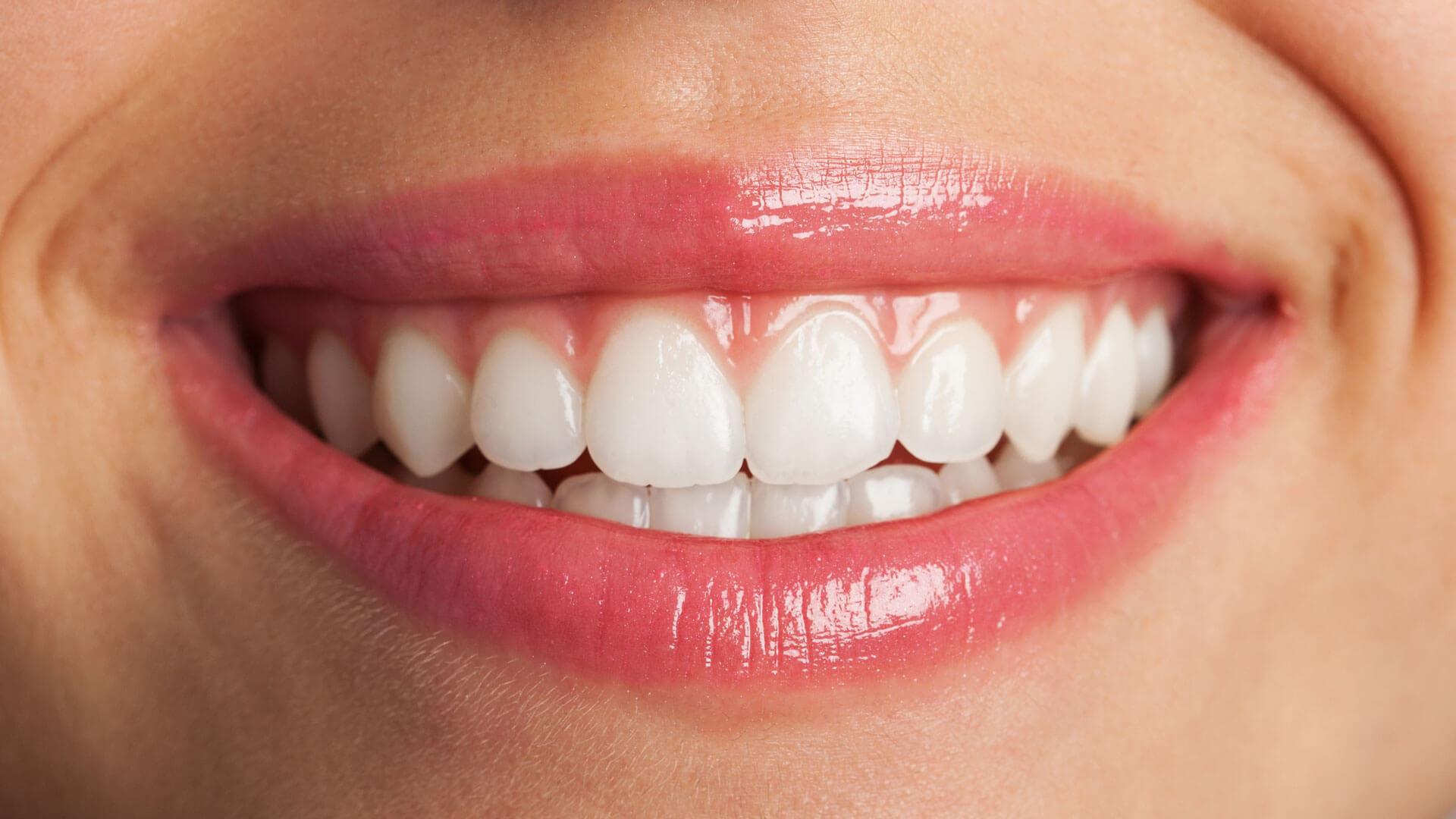 ¿Cómo lograr una sonrisa blanca y perfecta?