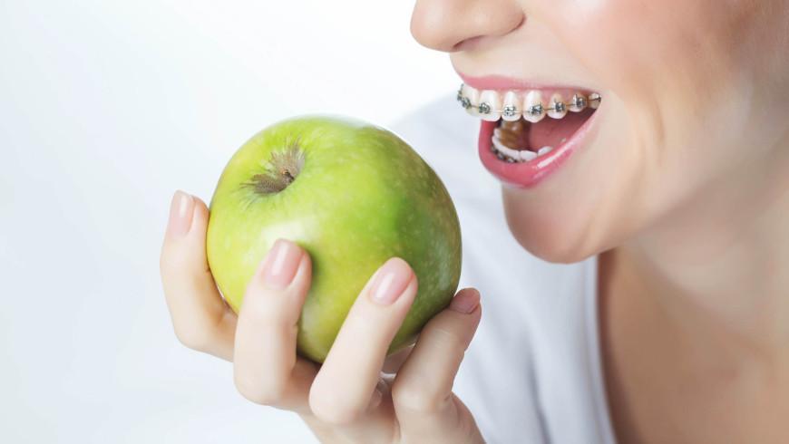 Alimentos que debes evitar si llevas ortodoncia